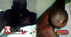 Haitiano-herido