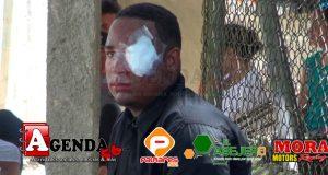 Lince-herido-en-huelga1