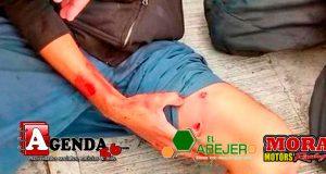 Herido-Muslo1